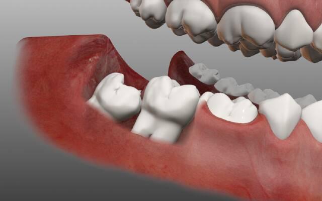 п'ята причина кривих зубів - зубам мудрості елементарно не вистачає місця в зубному ряду