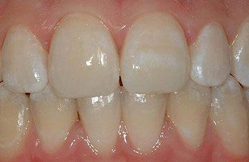 плями на зубах