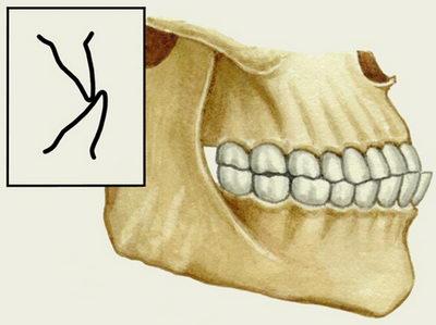 Розташування зубів при Прогеніческій прикусі