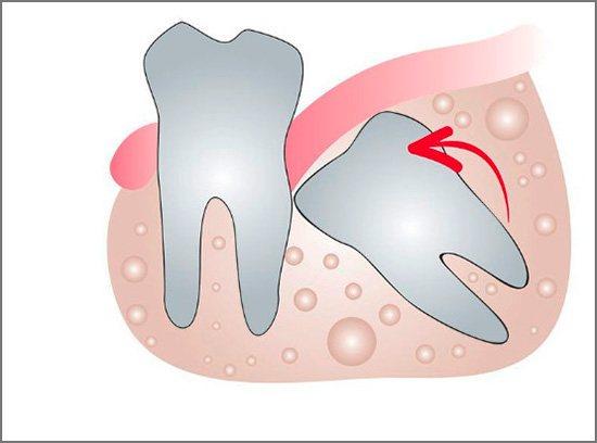 Зростаючі зуби мудрості можуть привести до серйозного порушення прикусу