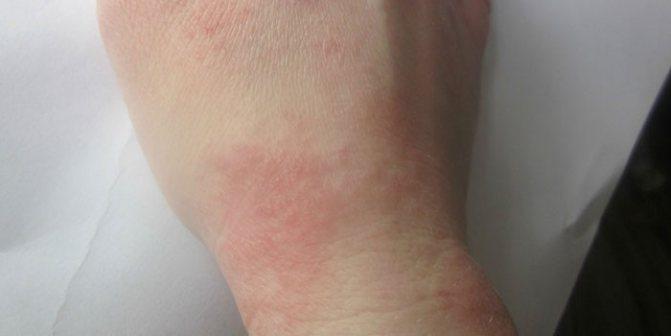 Роздратування шкіри на кисті руки