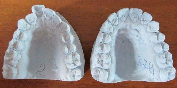 Різновиди зліпків зубів