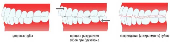 руйнування зубів при бруксизмі