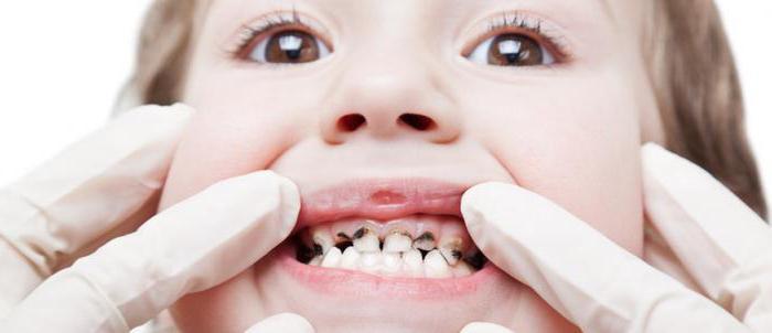 руйнування зубів у дітей