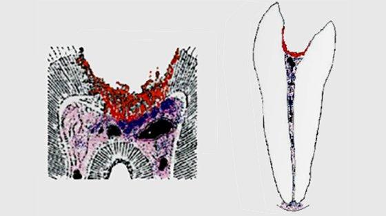 Розвиток хронічного пульпіту