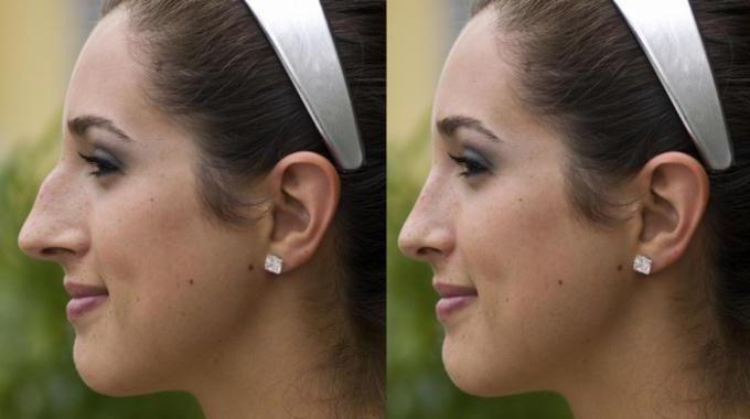 реабілітація після ринопластики носа