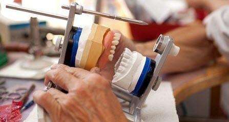 ремонт бюгельних протезів