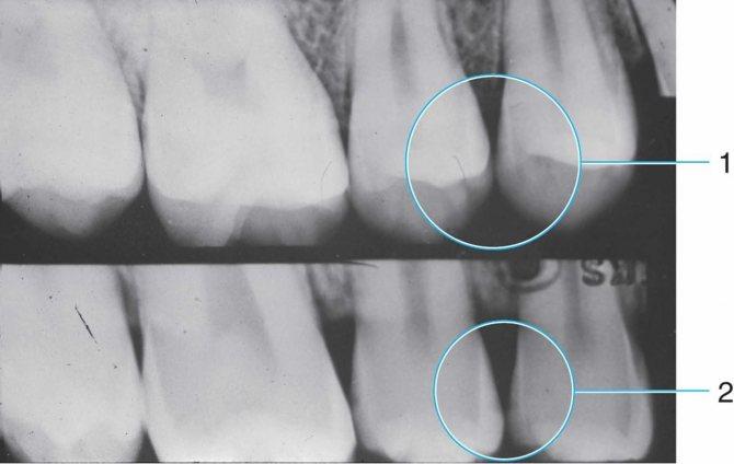 Рентген-знімок зубів з поверхневим карієсом