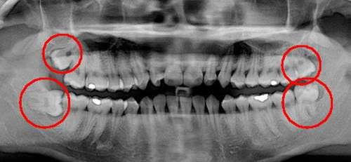 Рентген-знімок зубів