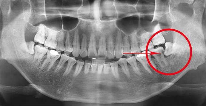 рентген зуба мудрості