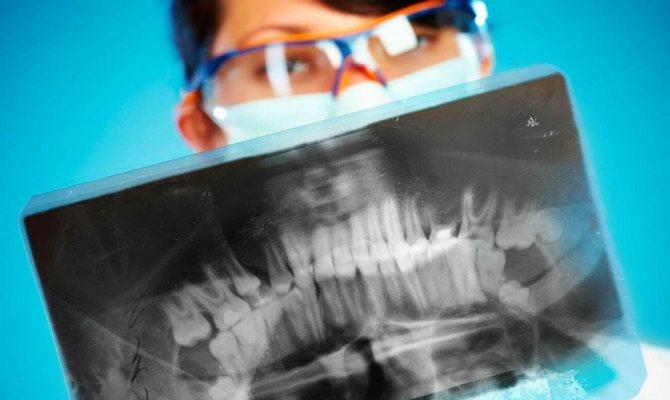 рентген зубів