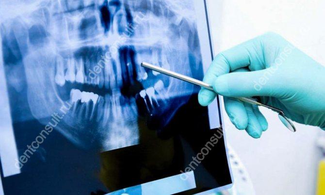 рентгенологічне обстеження