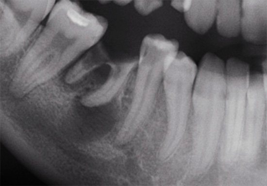 Рентгенівський знімок зубів: у кореня одного з них помітна область затемнення
