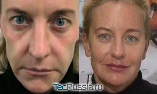 Реплері - фото до і після