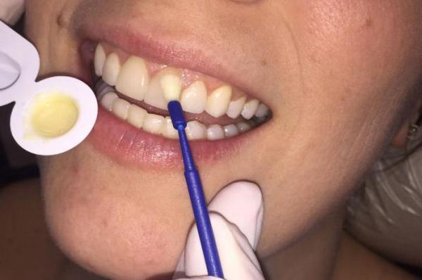 Реставрація тетрациклінових зубів