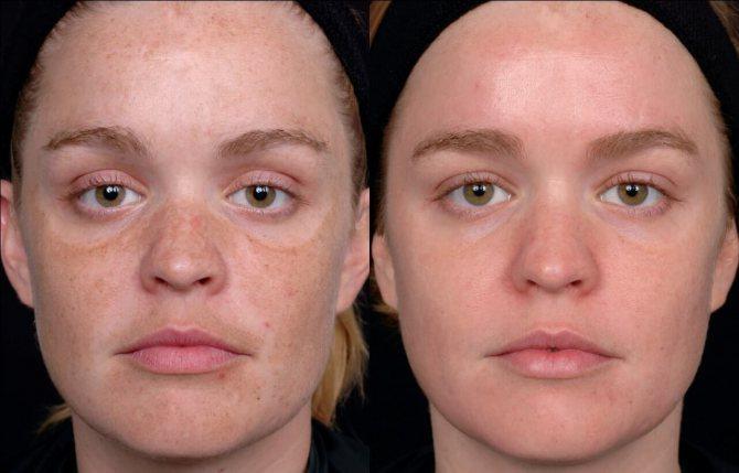 Результат після лазерної шліфовки особи