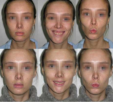 Рис Усунення ясенний посмішки з одночасним хірургічним збільшенням верхньої губи.