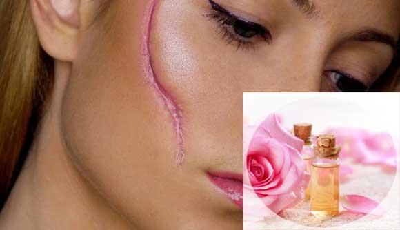 Рожеве масло від шрамів