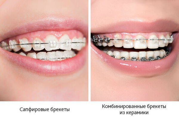 Сапфірові і комбіновані брекети з кераміки на зубах
