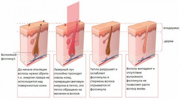 Сапфіровий лазер для видалення волосся