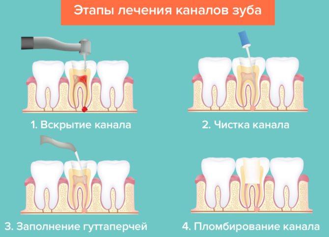 Схема лікування зубних каналів