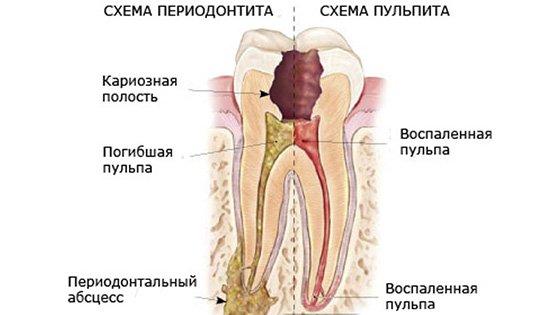 Схема періодонтиту і пульпіту