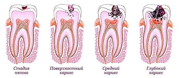 Схема «Розвиток карієсу в молочних зубах»
