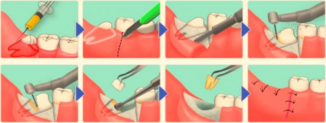 Схема видалення зуба