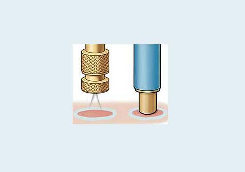 Схема впливу азотом через кріозонд