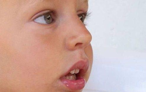 шоста причина неправильного положення зубів - це соматичні захворювання аденоїди лор.jpg