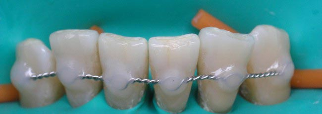 шинирование нижніх зубів