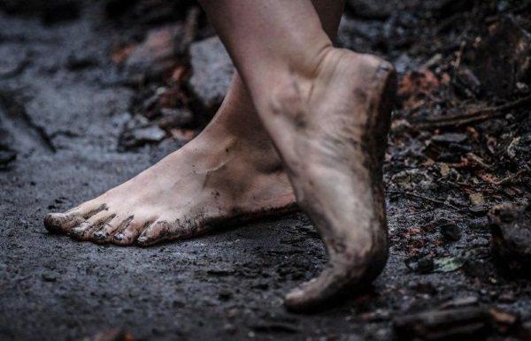 Шіпіца на нозі. Як позбутися, фото, лікування, видалення лазером, рідким азотом