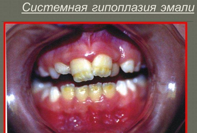 шіповідний зуб у дитини