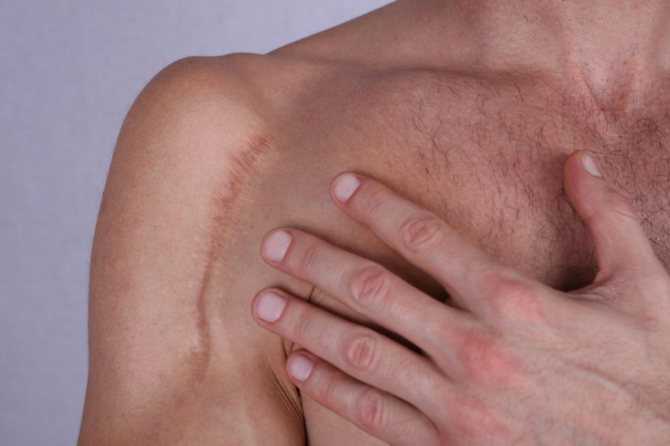 Шрам на плечі людини