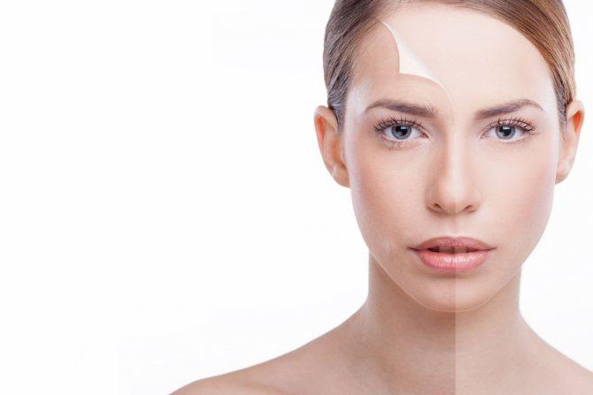 shutterstock 181689686 - Вітаміни від пігментації на обличчі