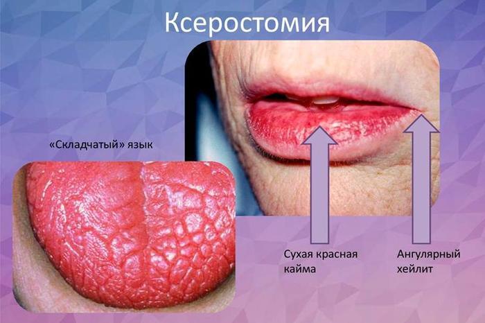 Сильна сухість у роті. Причини вночі, вранці, хвороби і лікування