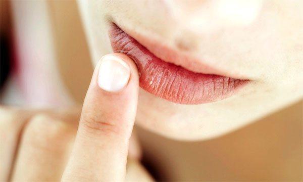 Симптоматика герпесу на губах