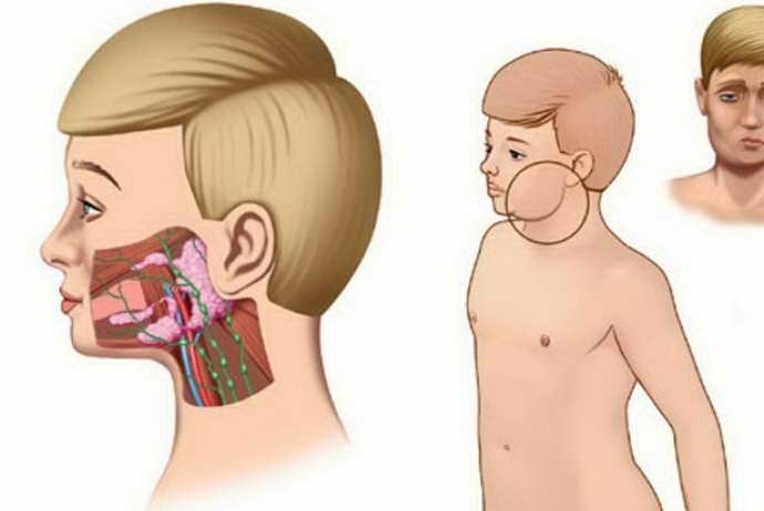 Симптоматика та лікування запалення привушної залози