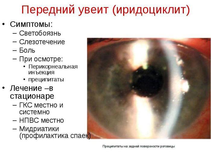 симптоми иридоциклита