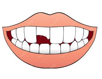 скол на передньому зубі