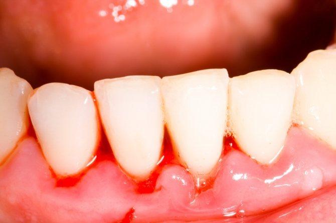 Скільки можна ходити з миш'яком в зубі і навіщо в зуб кладуть миш'як, скільки тримати?