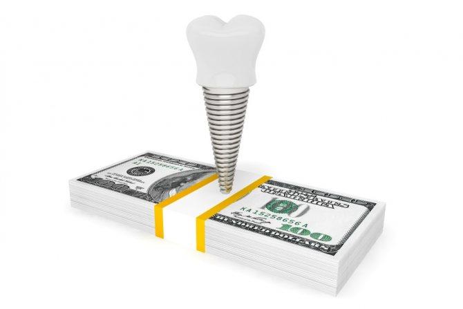Скільки коштує імплантація 1 зуба? в Москві і області