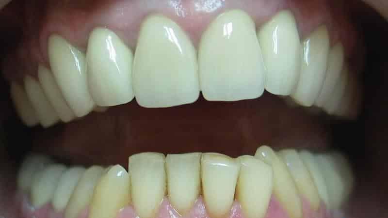 скільки коштує золотий зуб