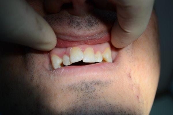 Скупченість зубів нижньої щелепи
