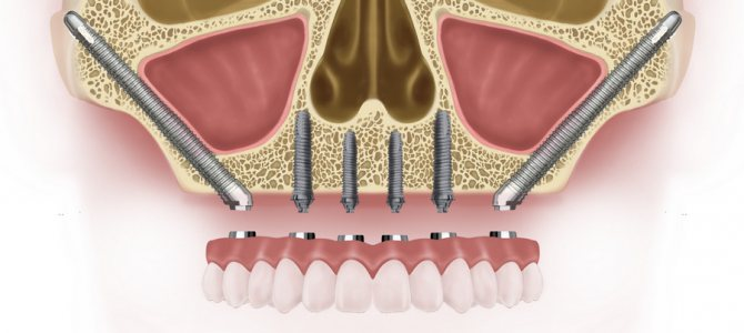 вилична імплантація може стати альтернативою базальному методу