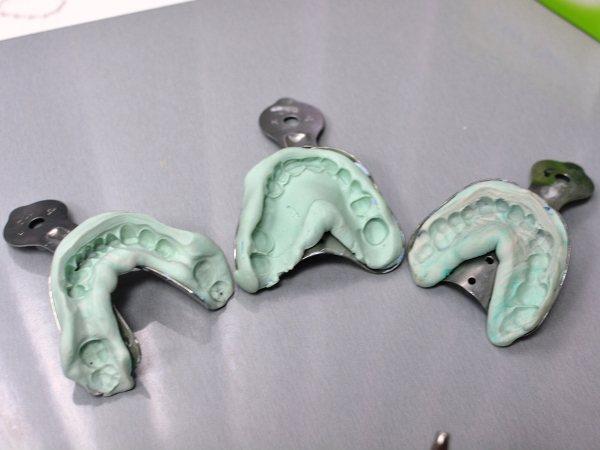 Зліпок зубів для брекетів