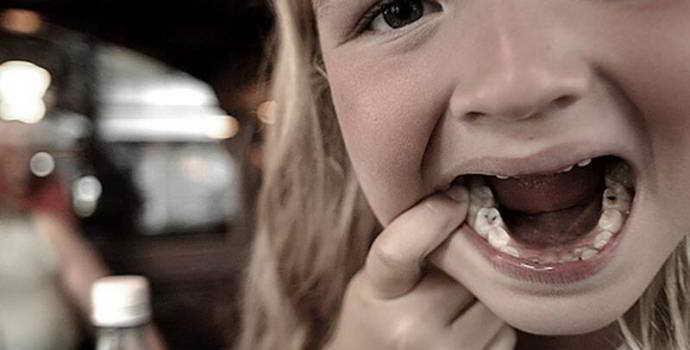 Зламалися молочні зуби через карієсу