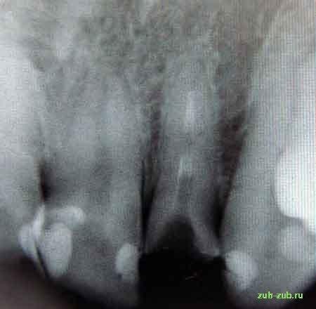 Зламався передній зуб, чи можна його встановити коронкою?