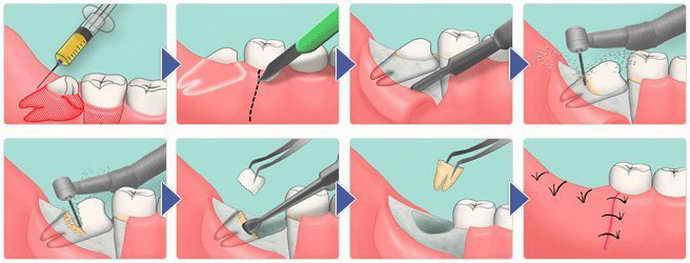 Складне видалення зуба мудрості