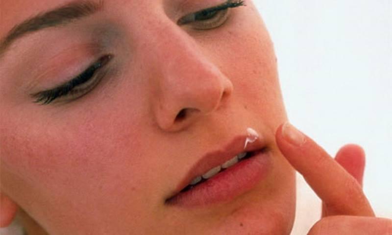 Змазування губ в області печіння